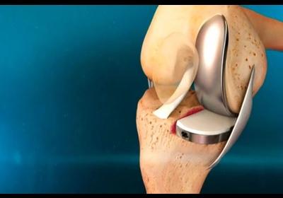 Операция по замене тазобедренного сустава в беларуси